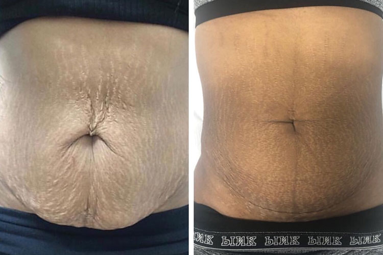 3D Stretch Marks