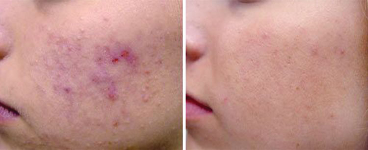 Active Acne Treatment Courtesy of: Robin Sult, R.N.Laser source: Nd:YAG (1064 nm)