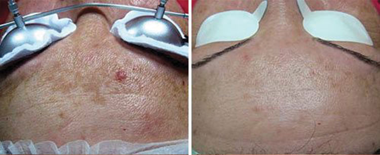 Pigmented Lesions Removal Face